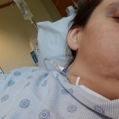 I Had An 82-Pound Large Ovarian Cyst: Getting Ready For My Ovarian Cyst Surgery