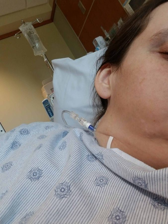 I Had An 82-Pound Large Ovarian Cyst: Getting Ready For My Ovarian Cyst Surgery 2