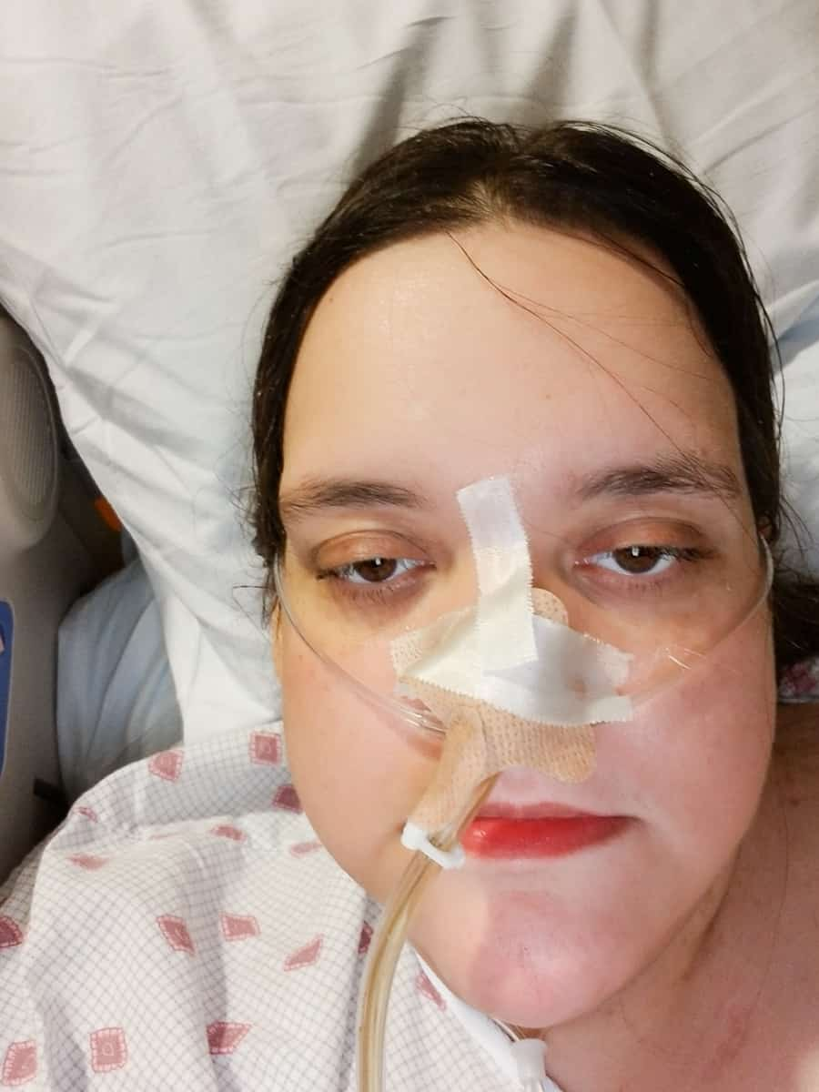 I Had An 82-Pound Large Ovarian Cyst: NG Tube Placement Fun 3