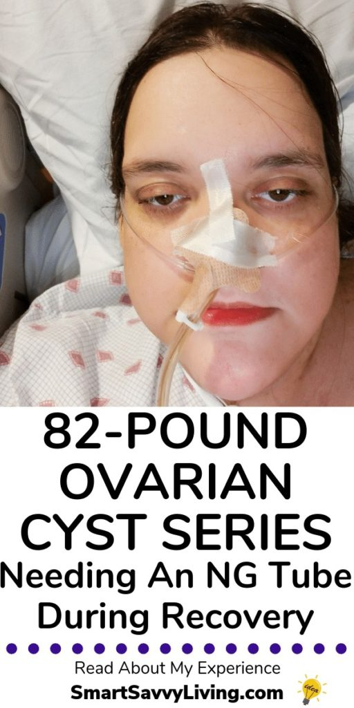 I Had An 82-Pound Large Ovarian Cyst: NG Tube Placement Fun